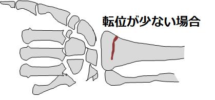 転位が少ない手首の骨折図