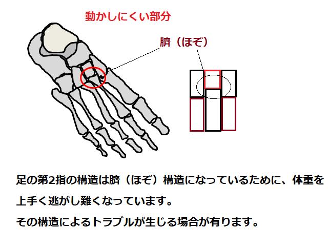 臍(ほぞ)構造の図