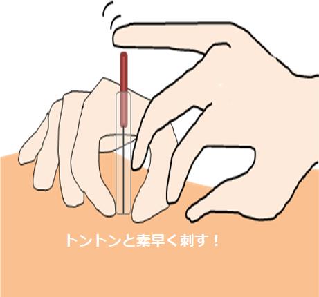 鍼を刺すところ